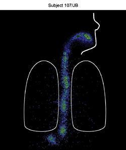 Oral-lyn Buccal Insulin X-RAY imagery proves no deposition into the lungs