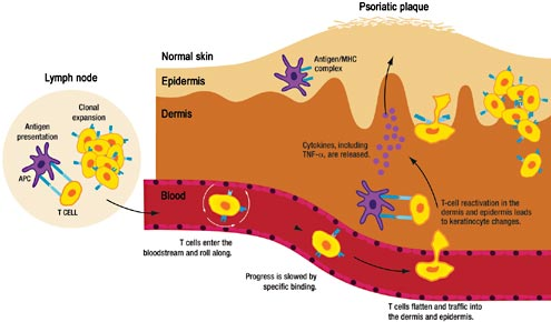 The immunology of psoriasis and biologic immunotherapy 2
