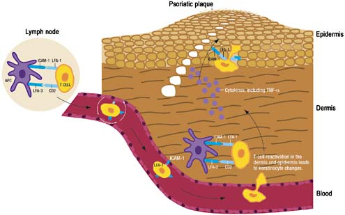 sites of inflammation including psoriatic skin, and local reactivation